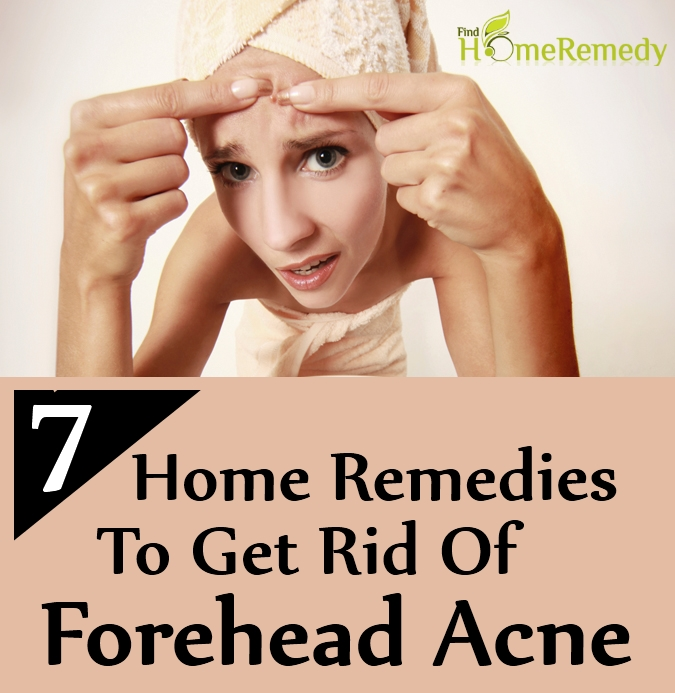 Home Remedies To Get Rid Of Forehead Acne