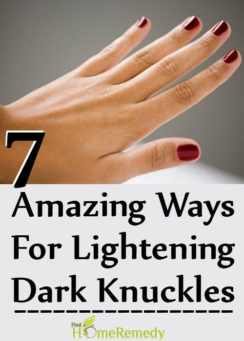 7 Amazing Ways For Lightening Dark Knuckles