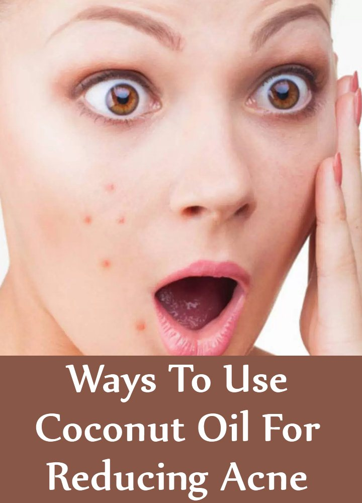 7 Amazing Ways To Use Coconut Oil For Reducing Acne