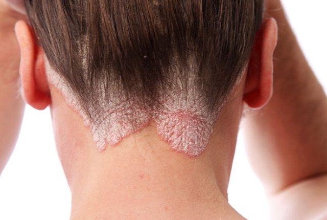 Arnica Helps To Control Eczema