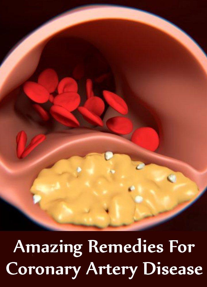 9 Amazing Remedies For Coronary Artery Disease