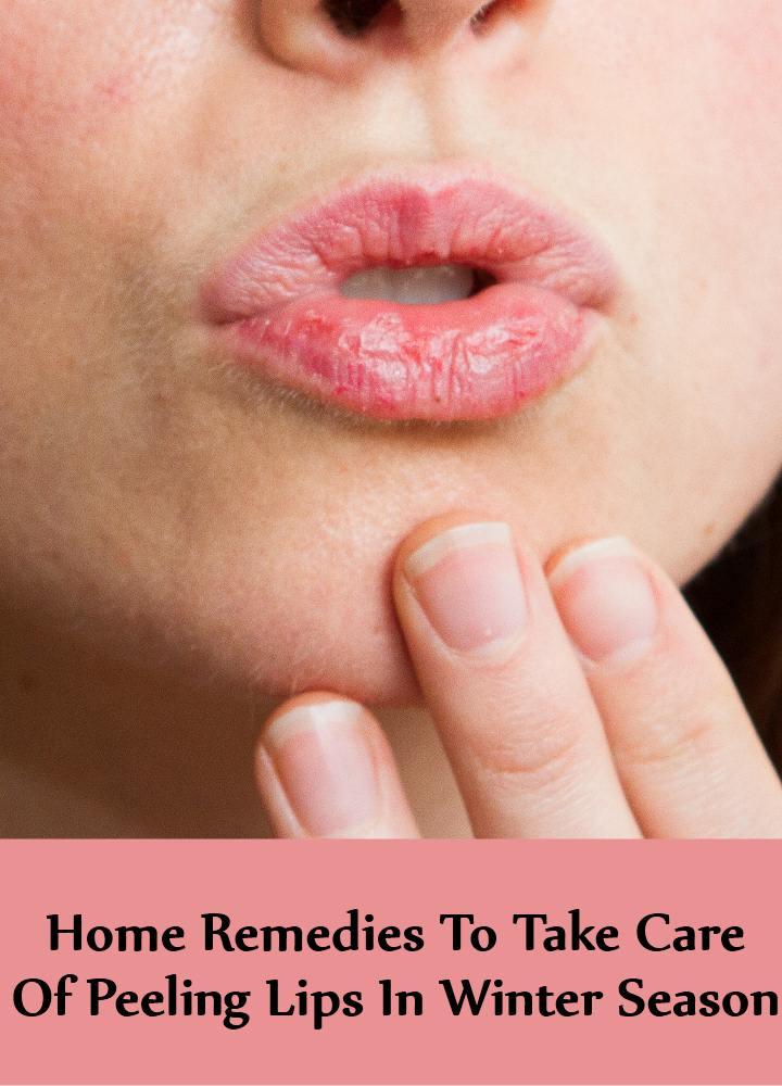 5 Home Remedies To Take Care Of Peeling Lips In Winter Season