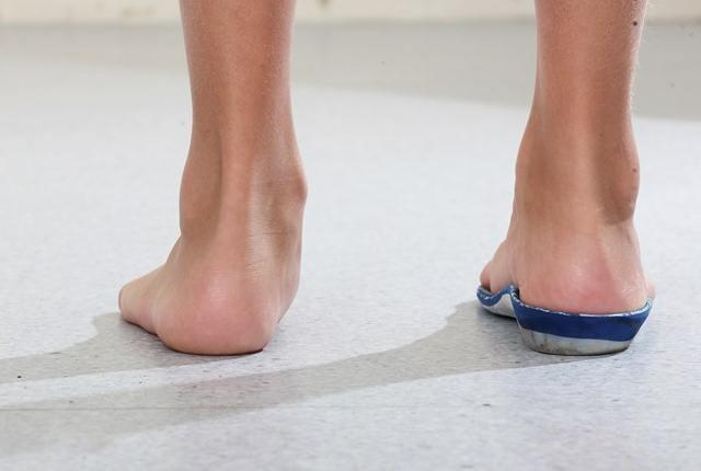 Over-Pronated Feet