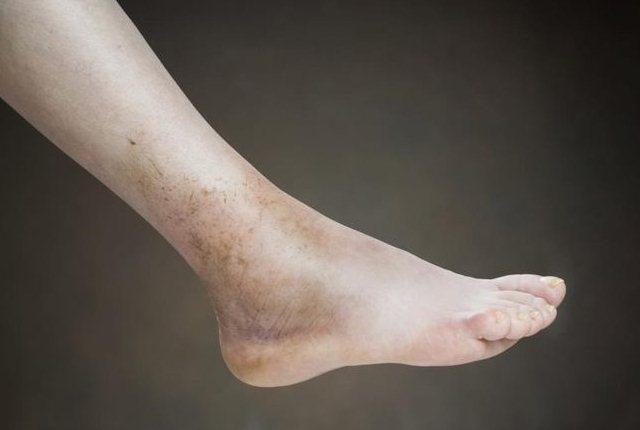 Swelling