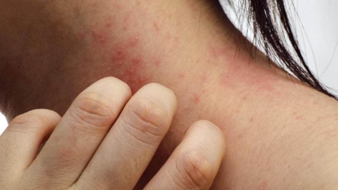 5 Best Ways To Make Oatmeal Bath For Eczema | Find Home