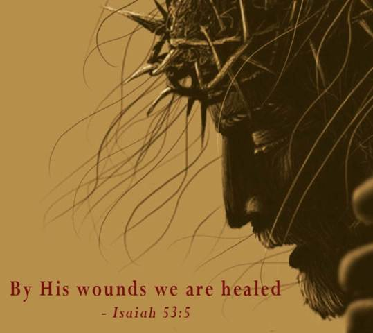 By His Wounds Ministry