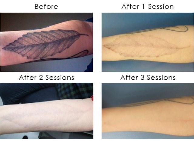 Laser Tattoo Removal: Shining Light on a Flourishing Industry