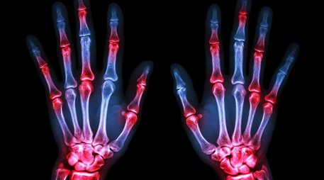 Rheumatoid Arthritis FindMeCure Clinical Trials