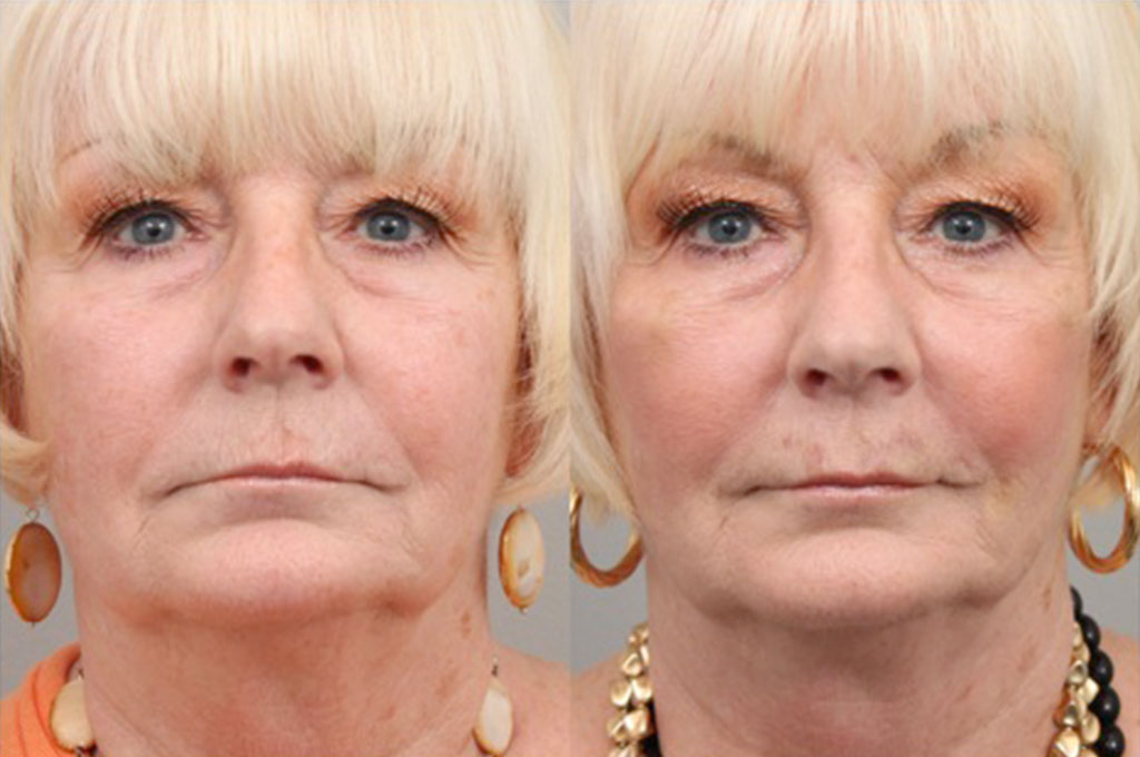 Injections  Dr Connie Hiers Plastic Surgery and Med Spa
