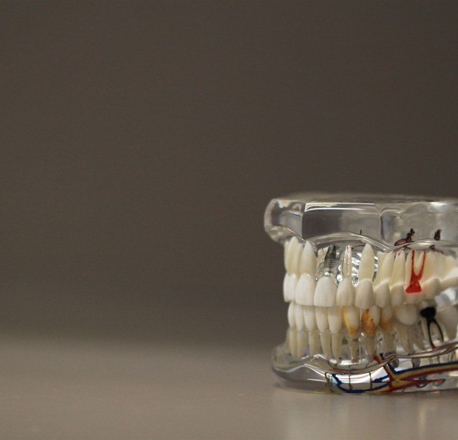 replica of gums