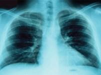 Tumore al polmone in aumento, a causa del fumo, tra le donne toscane