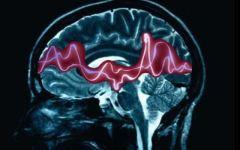 Gli italiani scoprono il gene dell'epilessia