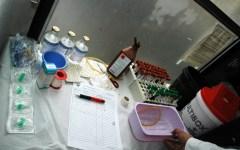 Arezzo: caso Zika, un viaggiatore di ritorno dall'America centrale, non è grave