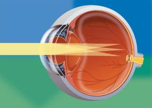 astigmatism, astigmatism question and answers | Firmoo Answers