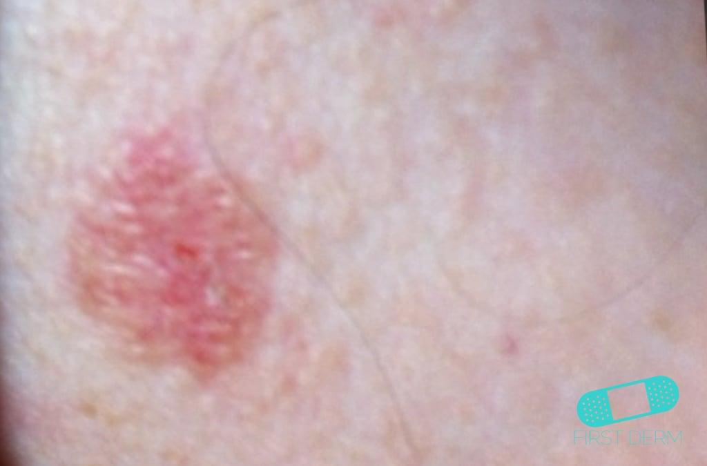 Online Dermatology - Basal cell carcinoma (Basal cell skin ...