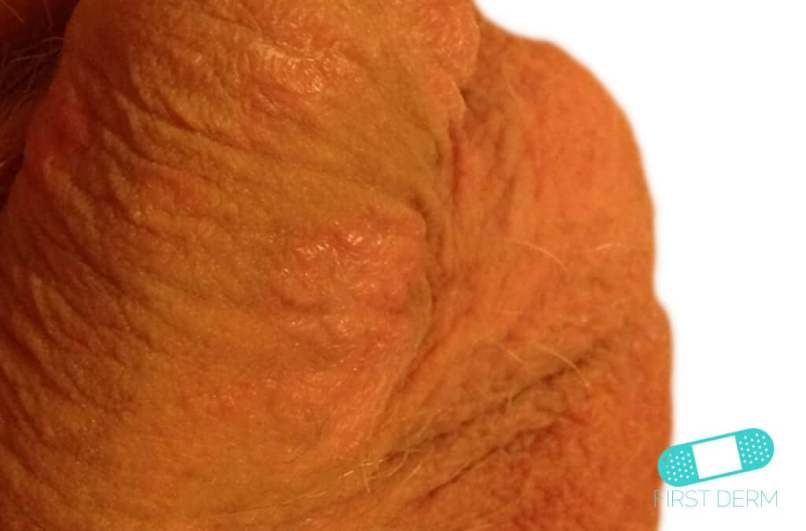 dry flaky penile skin | Diydrywalls org