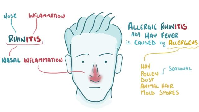 Allergic Rhinitis A neglected disease sharing symptoms with COVID19 heres how to identify it