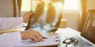 Legge bilancio 2020: estensione categorie soggetti esenti spesa sanitaria