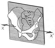 Fig. 2.1 - bacino