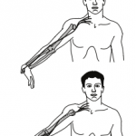 The Validity of Upper-Limb Neurodynamic Tests for