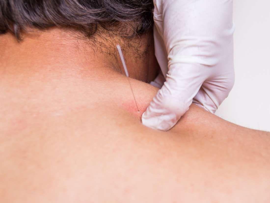Effetti avversi dopo trigger point dry needling