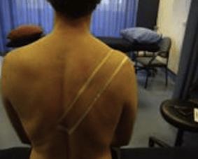 Risposta nel breve termine ad un singolo trattamento di MWM con e senza tape nella spalla dolorosa