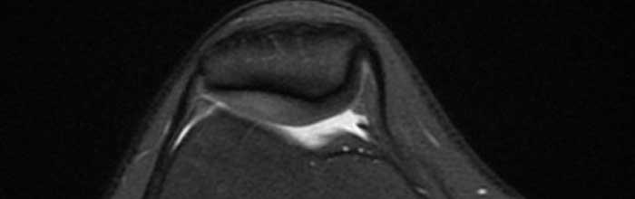 Accuratezza diagnostica dei test per la sindrome della plica rotulea mediale
