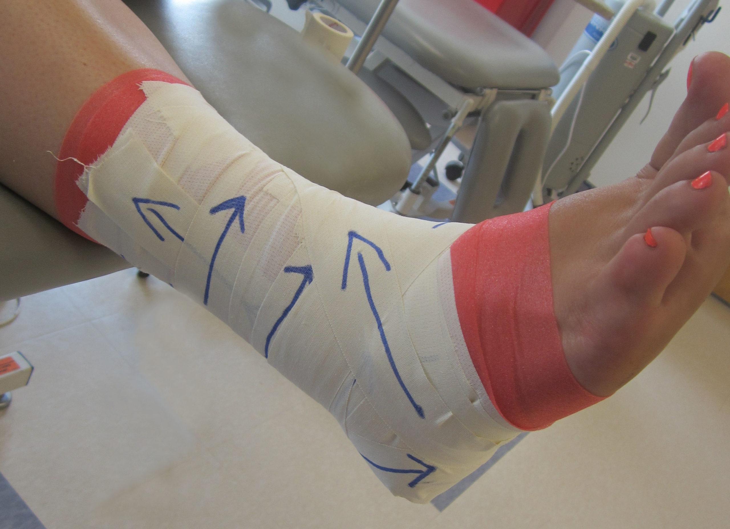Effetti meccanici del taping di caviglia