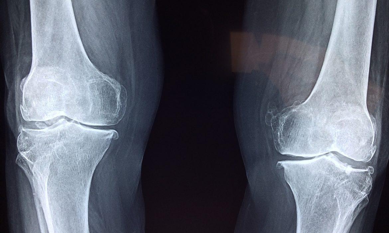 Efficacia della mobilizzazione passiva continua dopo sostituzione protesica di ginocchio