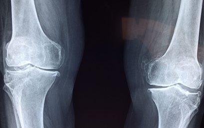 Il ruolo del rinforzo muscolare nell'artrosi di ginocchio