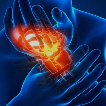 Validità dei test clinici sensoriali per rilevare la degenerazione delle fibre nervose di piccolo calibro