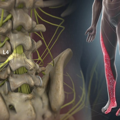 Diagnosi e trattamento della sciatalgia