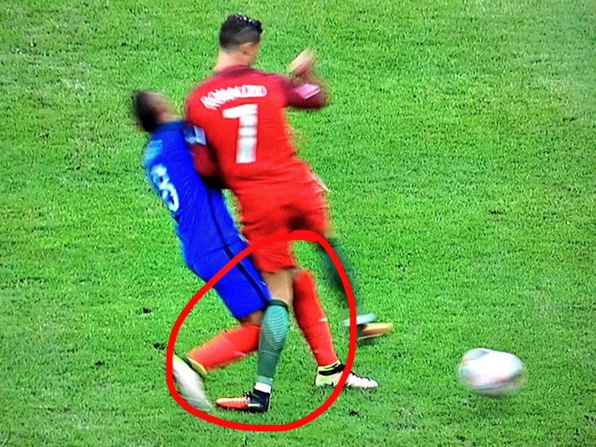 Lesione del legamento collaterale mediale nei calciatori professionisti