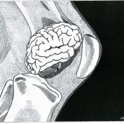 Dolore femororotuleo e alterazioni del sistema nervoso centrale