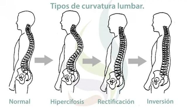 La lordosis o curvatura lumbar. ¿Qué es? Consejos y ejercicios para recuperarla.
