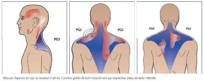Resultado de imagen de cefalea tensional