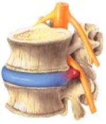 Cervicale Ernia del disco lombare