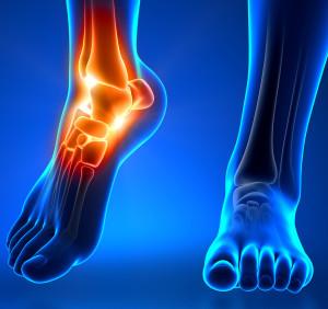 piede e postura