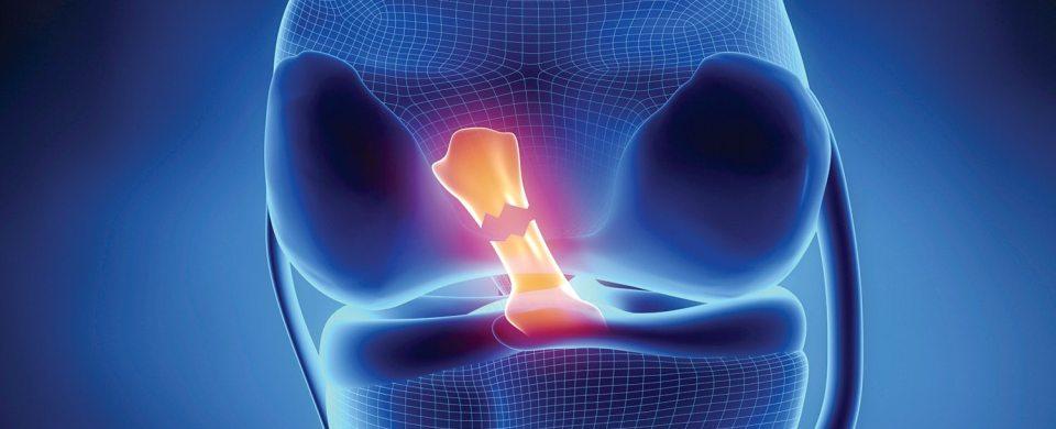 Ginocchio crociato anteriore roma e bergamo fisioterapia riabilitazione