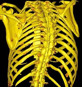 Scoliosi migliore fisioterapia
