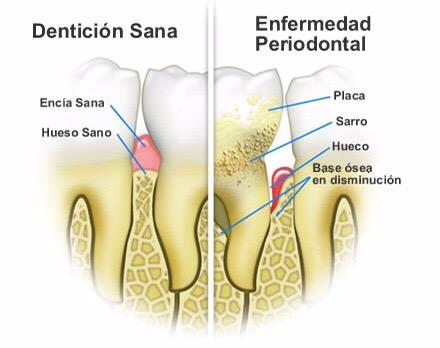 Dibujo_que_muestra_las_diferencias_entre_dientes_sanos_y_con_caries