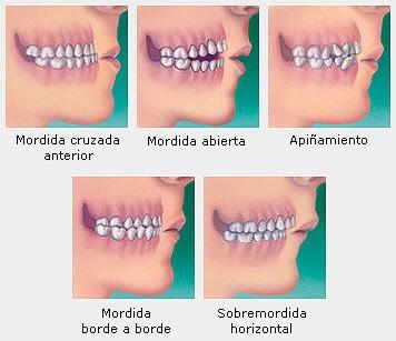 tratamiento para mordida borde a borde ortodoncia