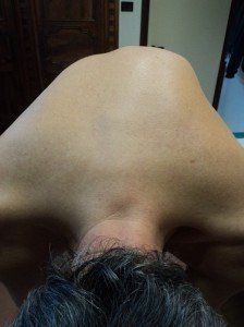 Scoliosi lombare e dorsale sintomi esercizi e busto