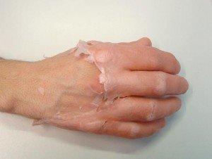 Paraffinoterapia alle mani per lartrosi della dita e controindicazioni
