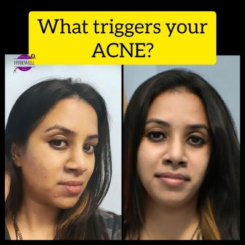 Observe what triggers your acne without falling for acne myths