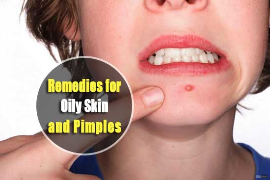 Home Remedies for Oily Skin and Pimples
