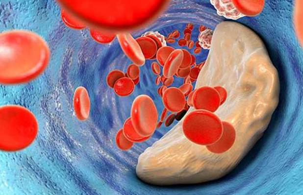 Ways to Lower Bad Cholesterol
