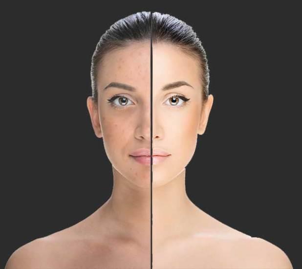 uneven skin tone remedy