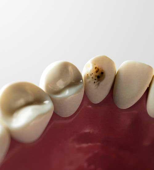 Tooth Abscess
