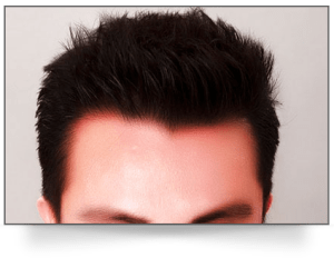 restore lost hair tips and tricks